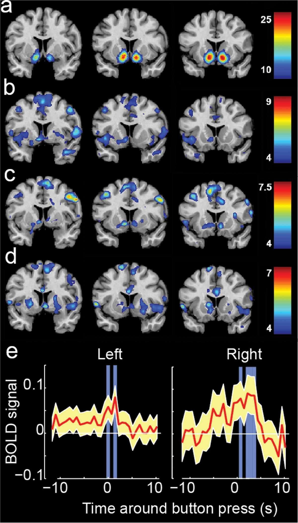 Религия и опиум действуют на мозг одинаково
