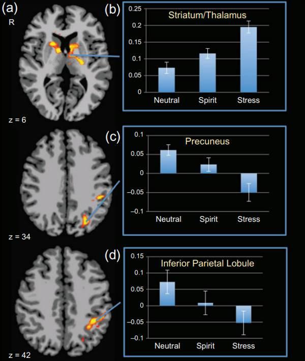 Активность мозга рассказала о пережитом религиозном опыте