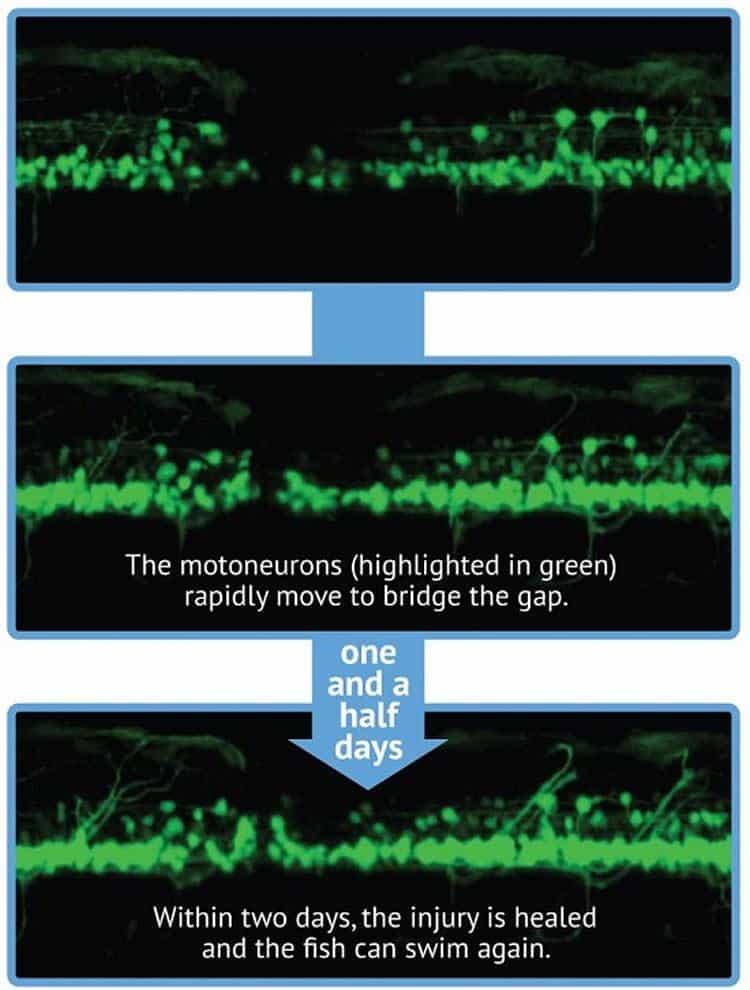 Стволовые клетки восстановили поврежденный спинной мозг