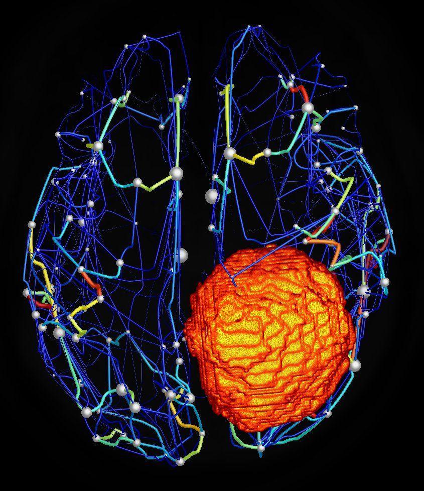 Виртуальная модель мозга предскажет исход нейрохирургического лечения