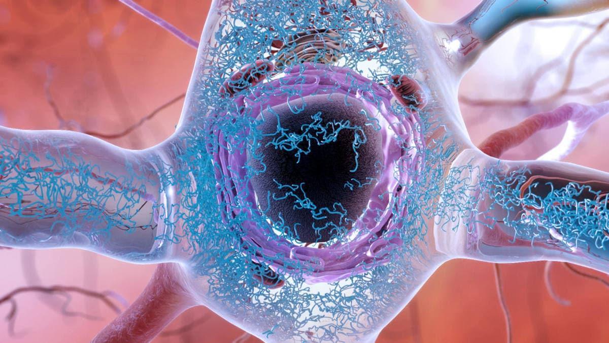 Раскрыт генезис болезни Альцгеймера