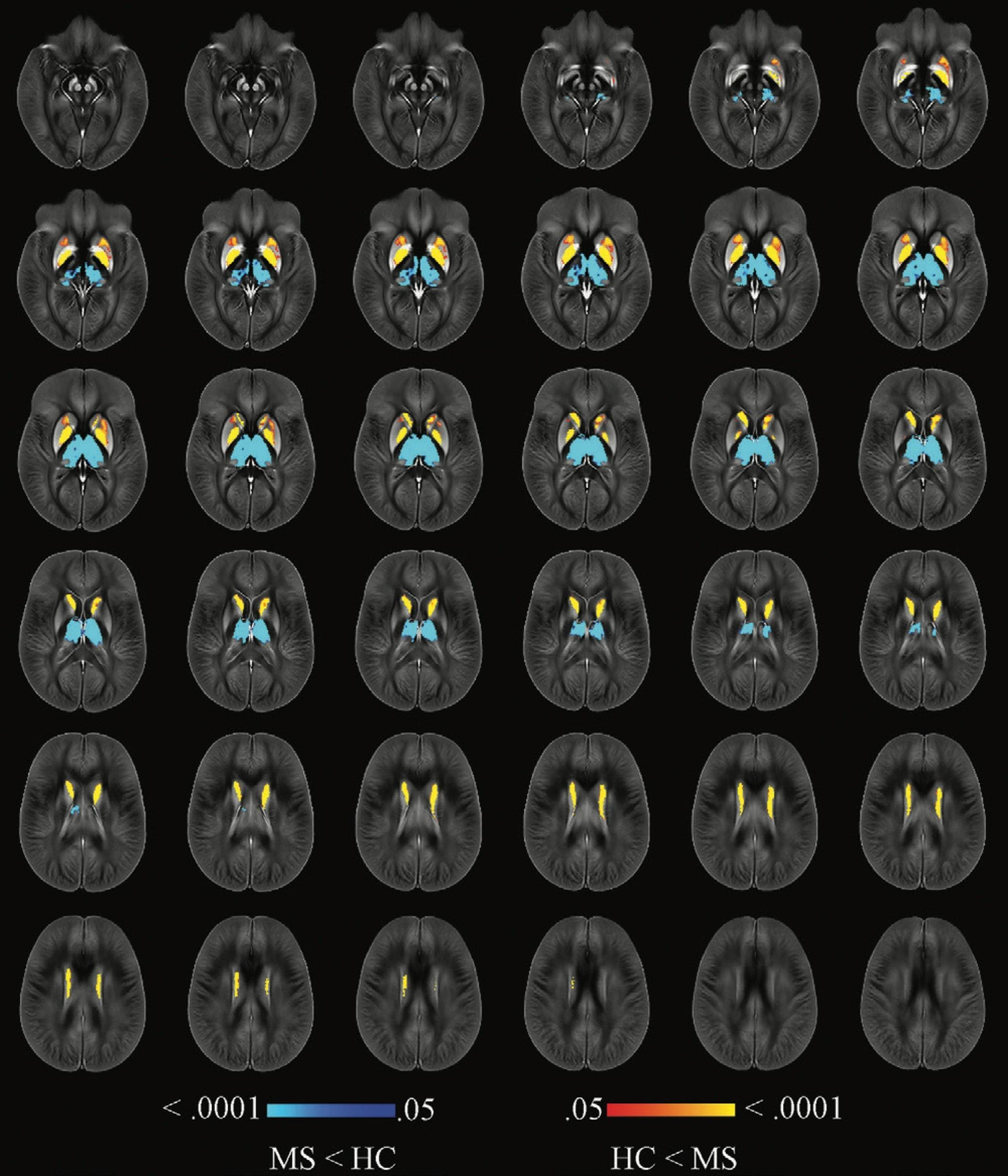 Уровень железа в мозге предсказал нарушения при рассеянном склерозе