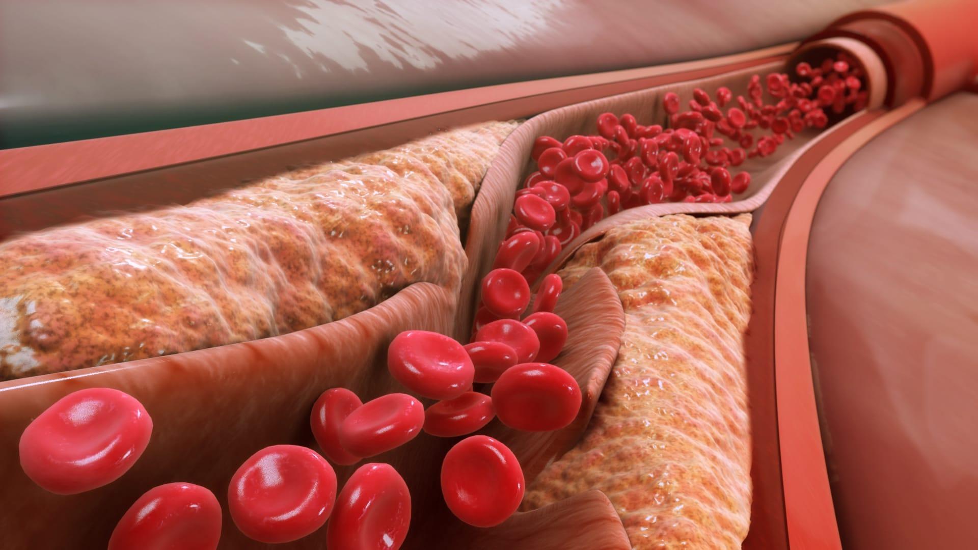 Генная медицина против атеросклероза