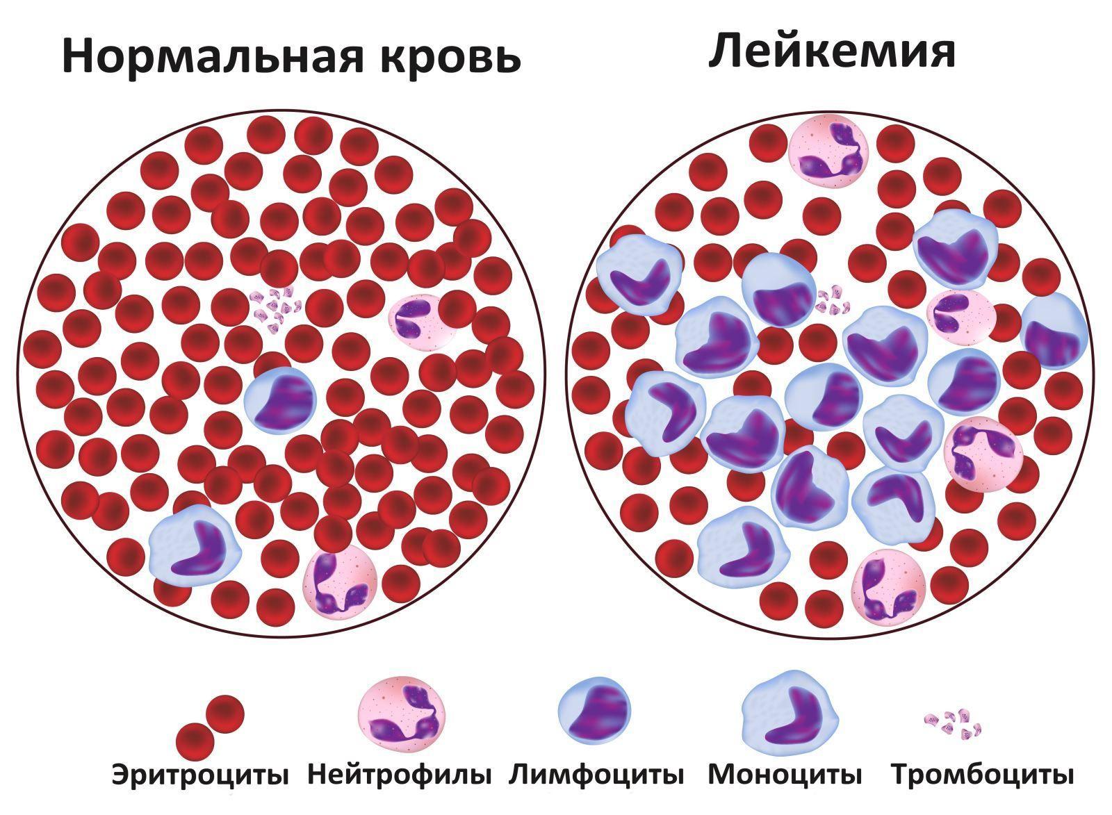 Как лейкемия приходит в мозг