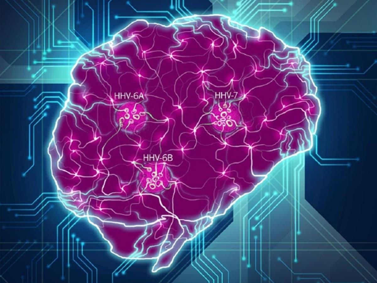 Вирус герпеса связан с развитием болезни Альцгеймера