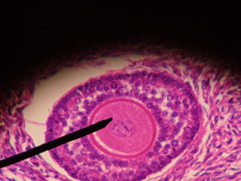 Искусственные яичники