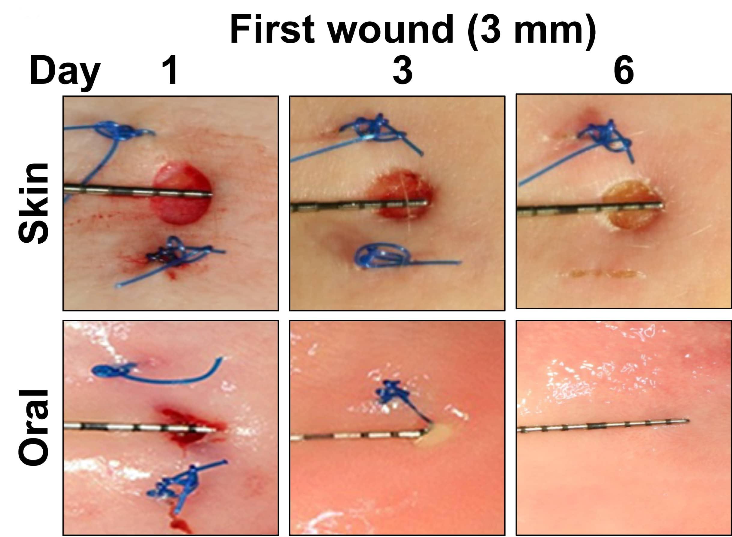 Почему раны во рту заживают быстрее остальных
