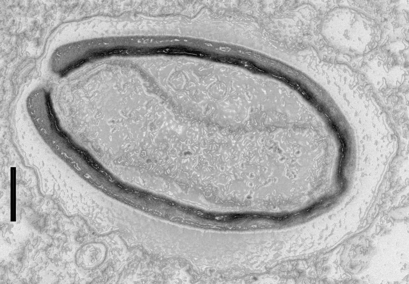 10 болезней, которые могли пожаловать к нам из космоса