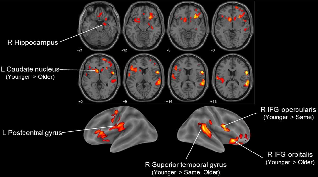 Ощущение молодости может означать замедленное старение мозга