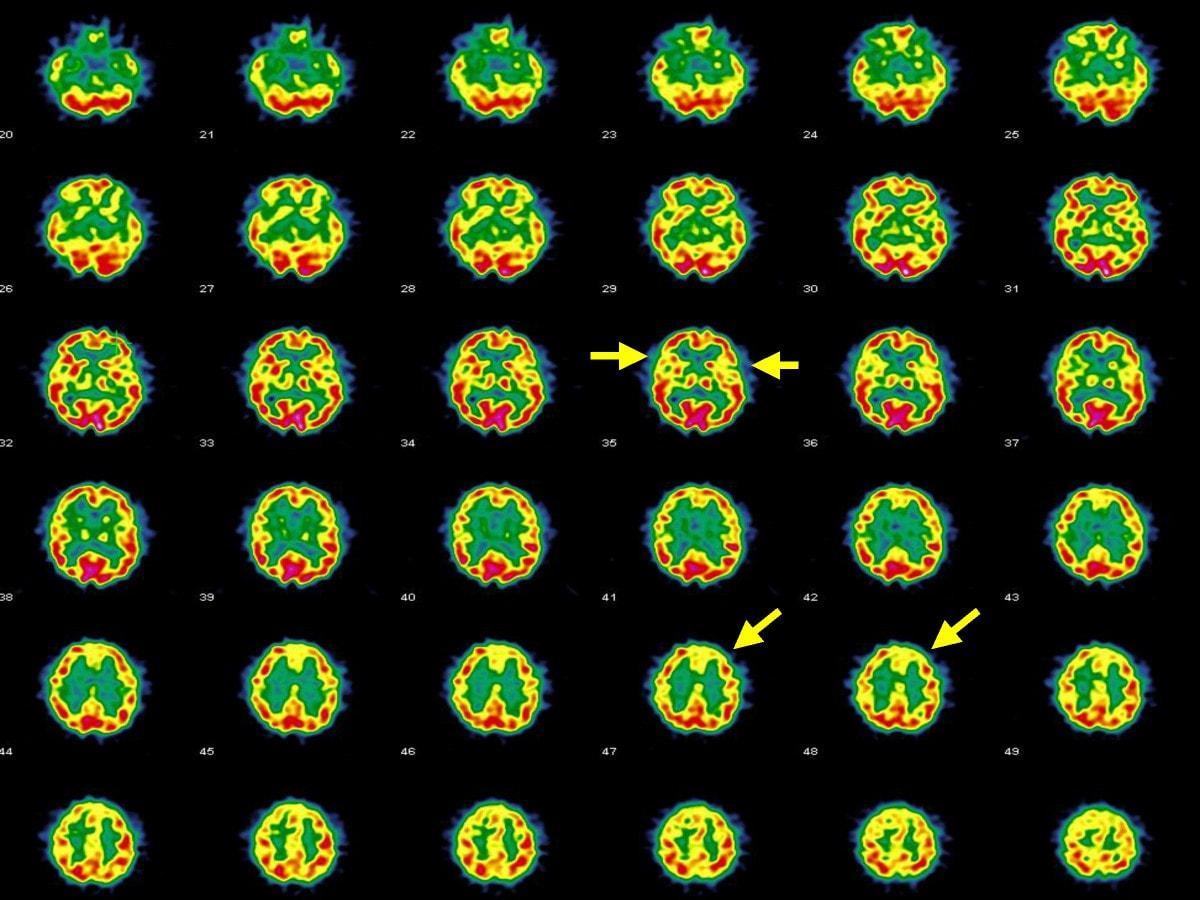 Как связаны возраст и мозговой кровоток