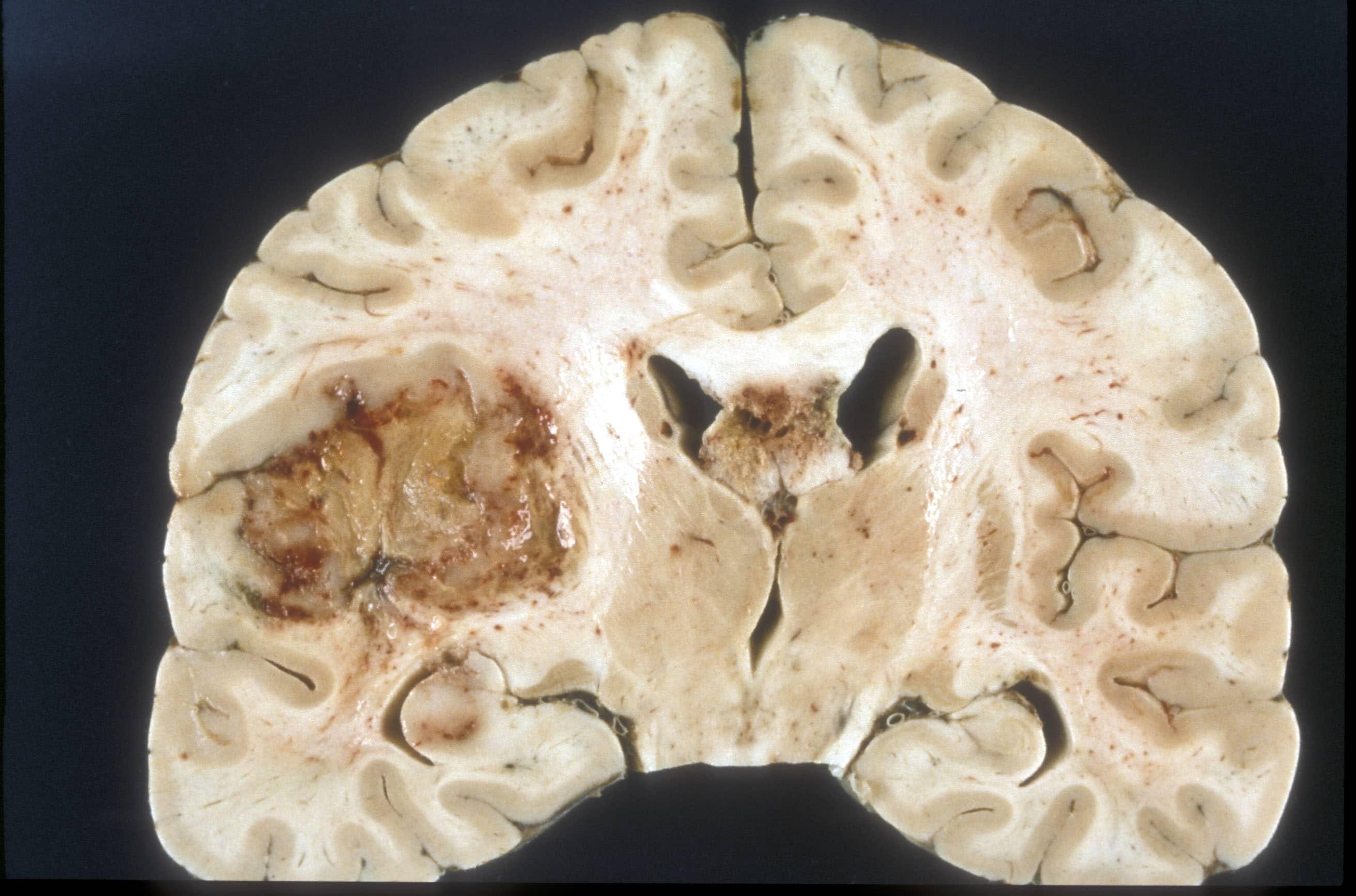 Машинный интеллект подберет персональное лечение глиобластомы