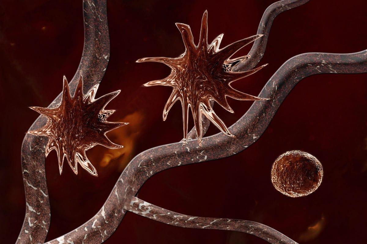 Первичная опухоль «замораживает» распространение вторичного рака