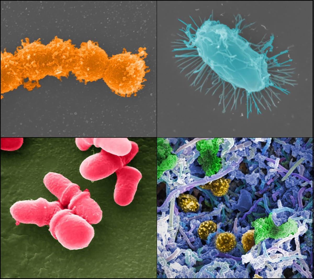 Трансплантация кала «поправляет здоровье» кишечных бактерий у онкобольных пациентов