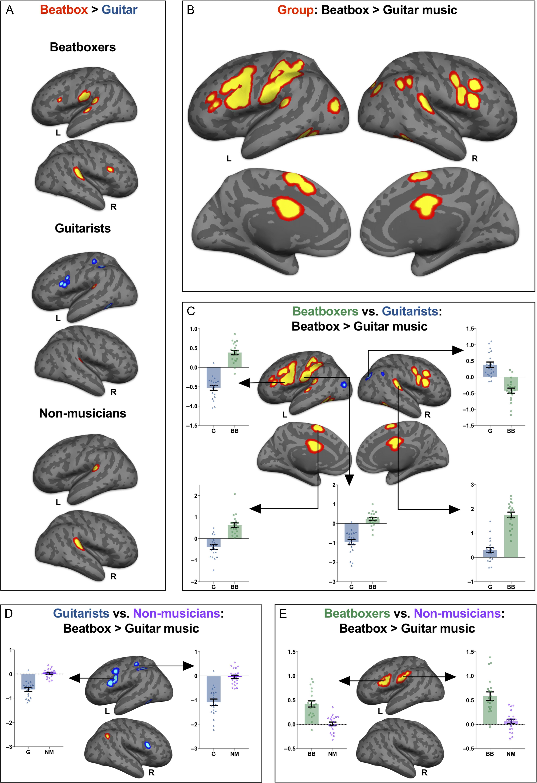 Мозг музыкантов «слышит» музыку по-разному