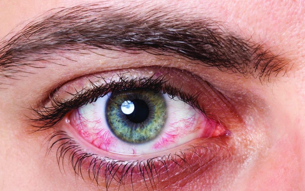Синдром сухого глаза: пять неожиданных причин и как с этим бороться