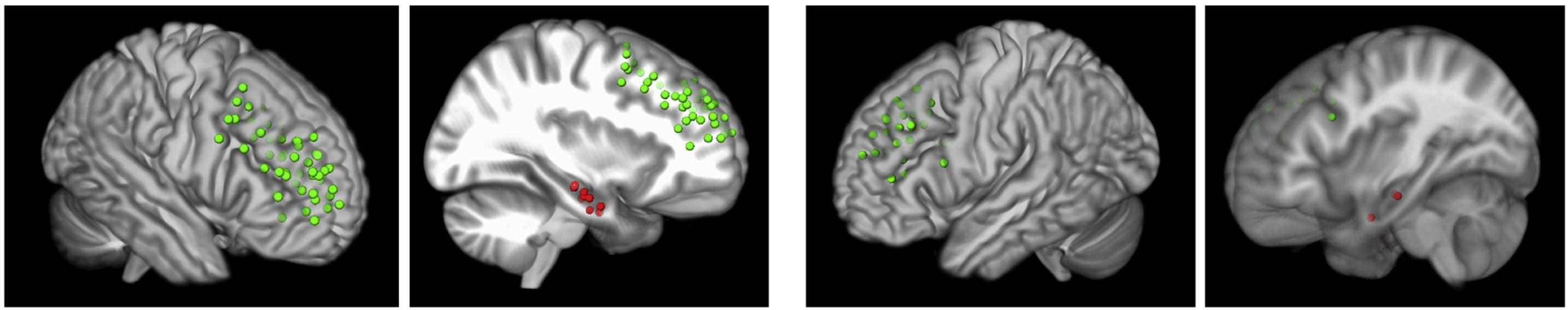 Как мозг «забывает» информацию
