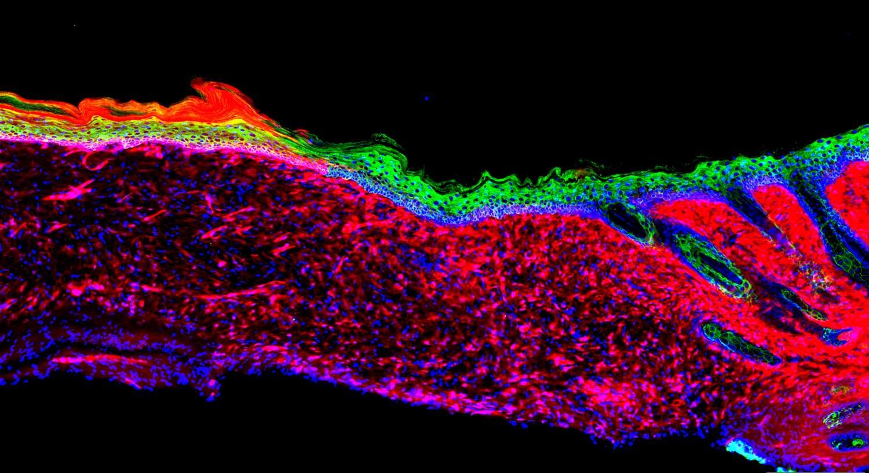 Мезенхимальные клетки мыши (красные) преобразуются в базальные кератиноциты (зелёные)