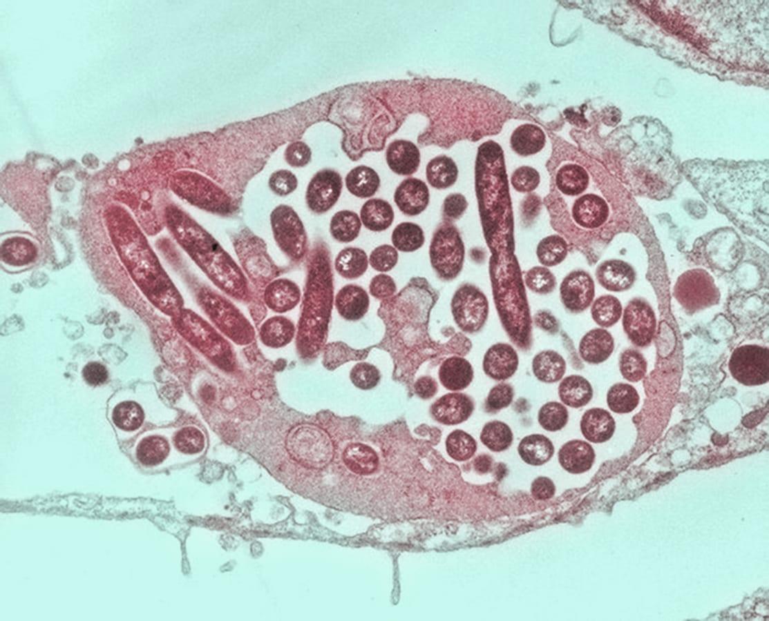 Как иммунные клетки борются с прячущимися бактериями