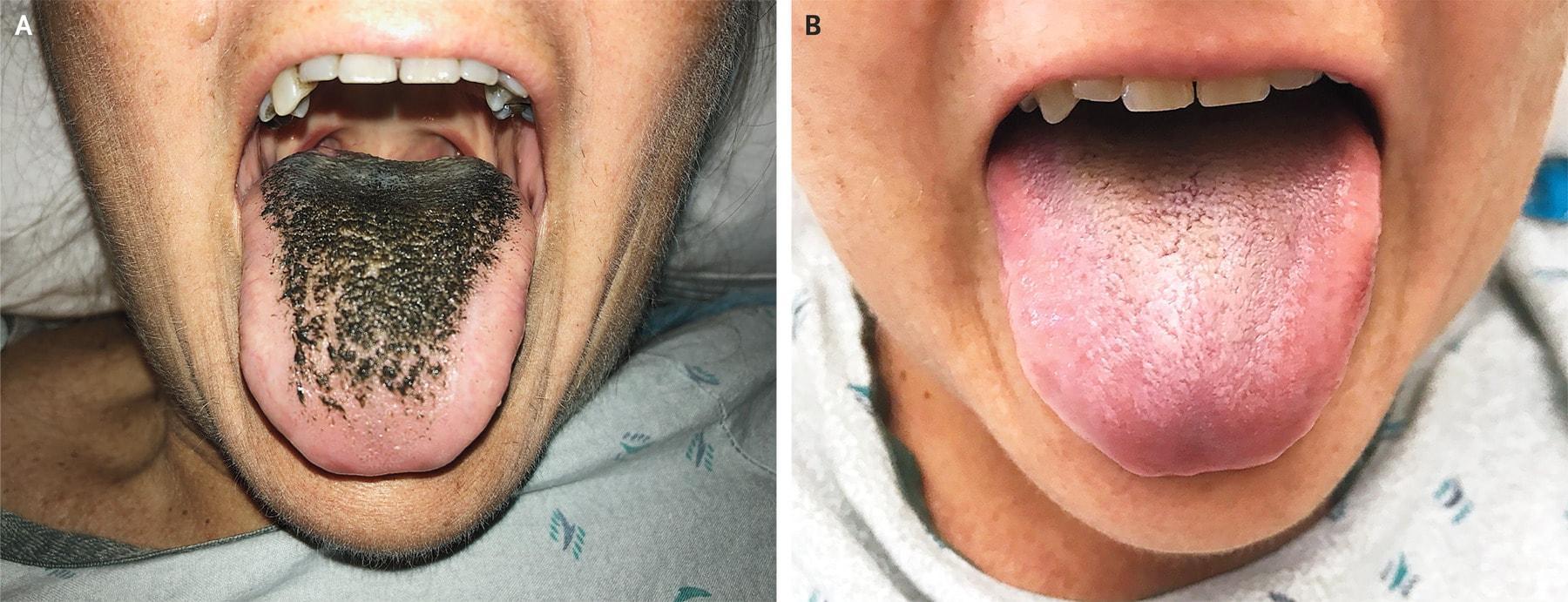 Прием антибиотика спровоцировал синдром «черного волосатого языка»