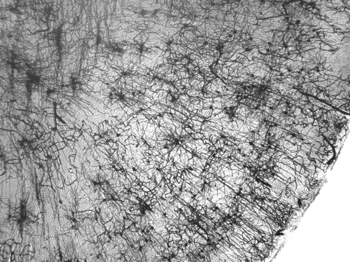 Как и зачем в мозге работает подавление шума