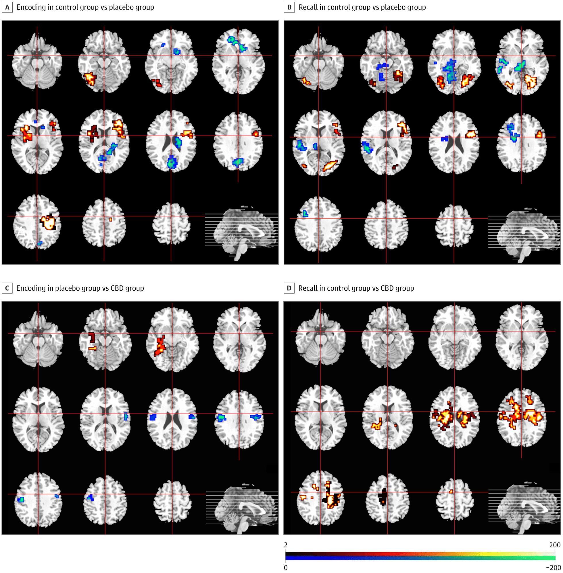 Каннабидиол восстановил работу мозга при психозе