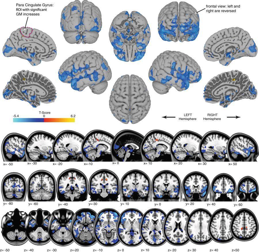 Как космос меняет мозг астронавта