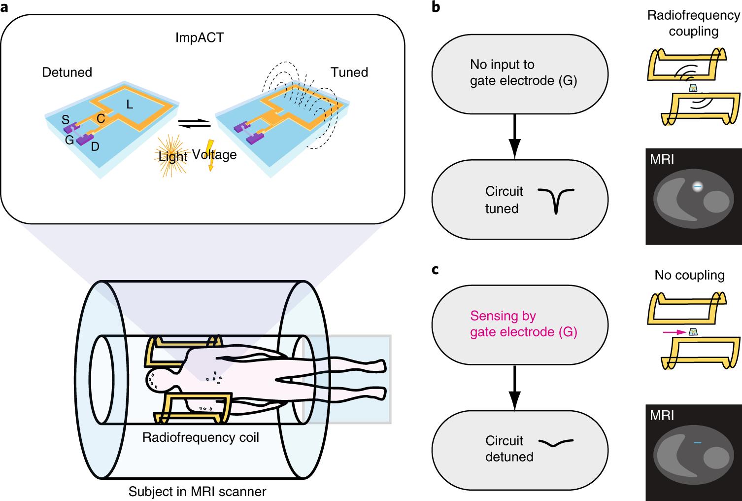 Как увидеть потенциал действия на МРТ