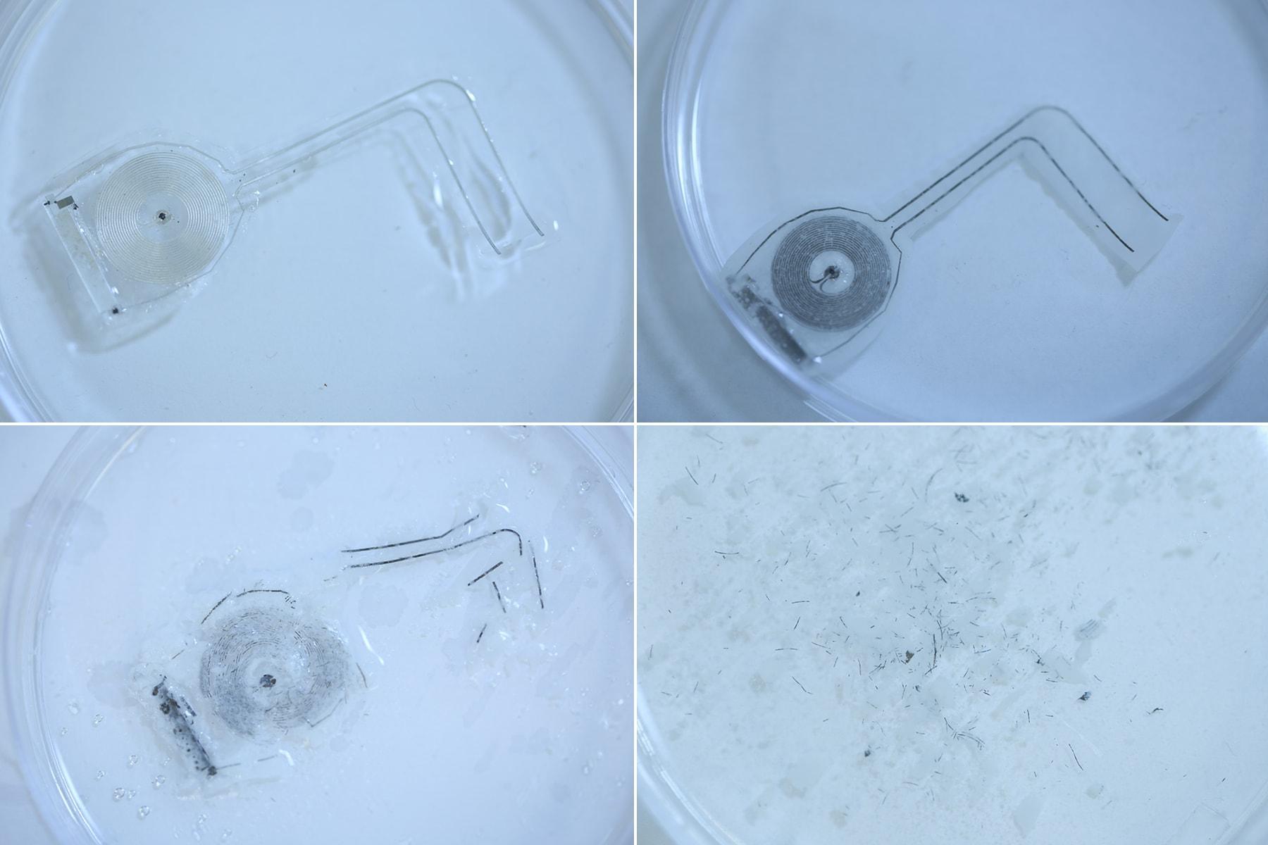 Новый биоразлагаемый имплантат ускорит восстановление повреждённых нервов