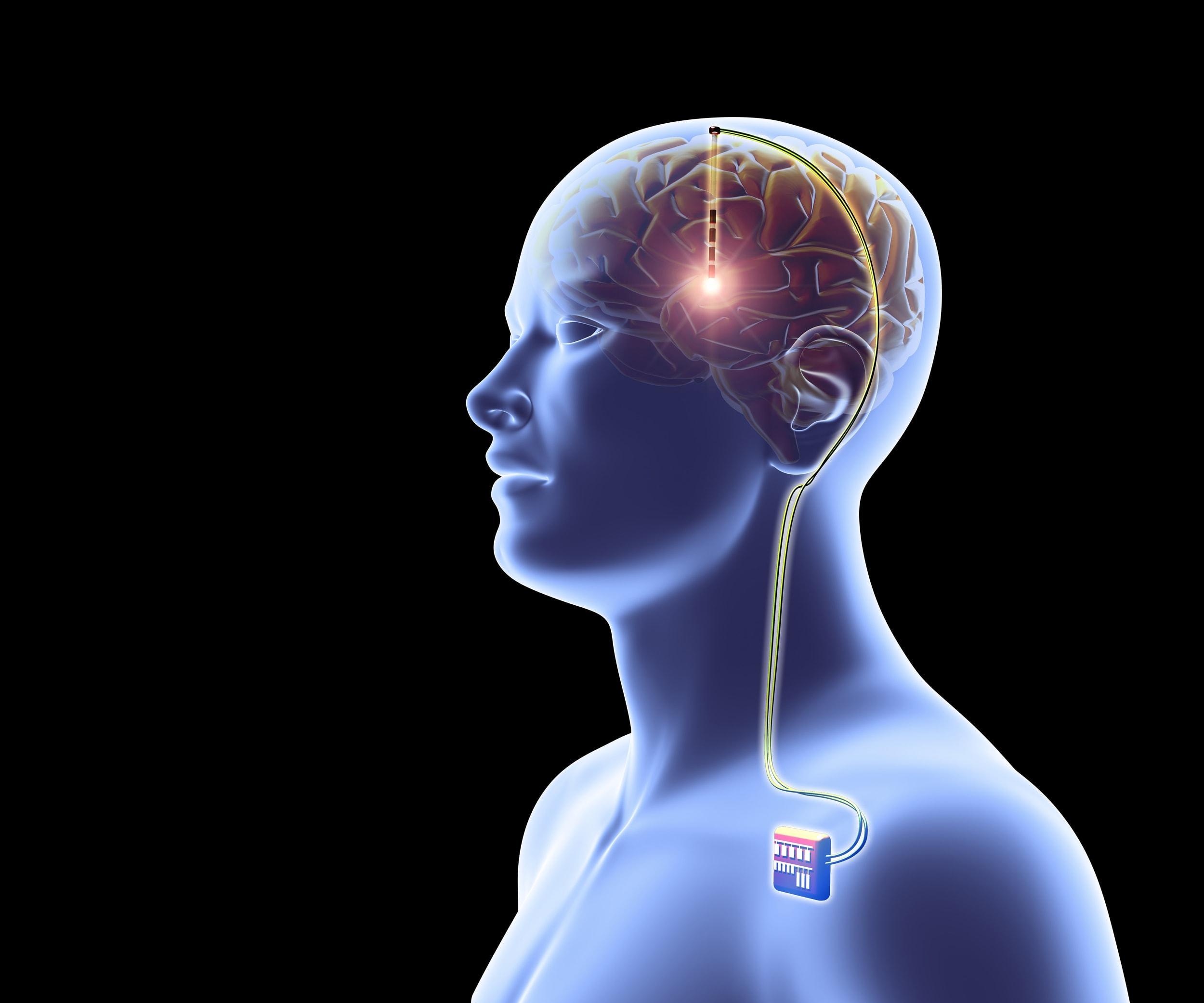 «Молодой» Альцгеймер не поддался глубокой стимуляции мозга