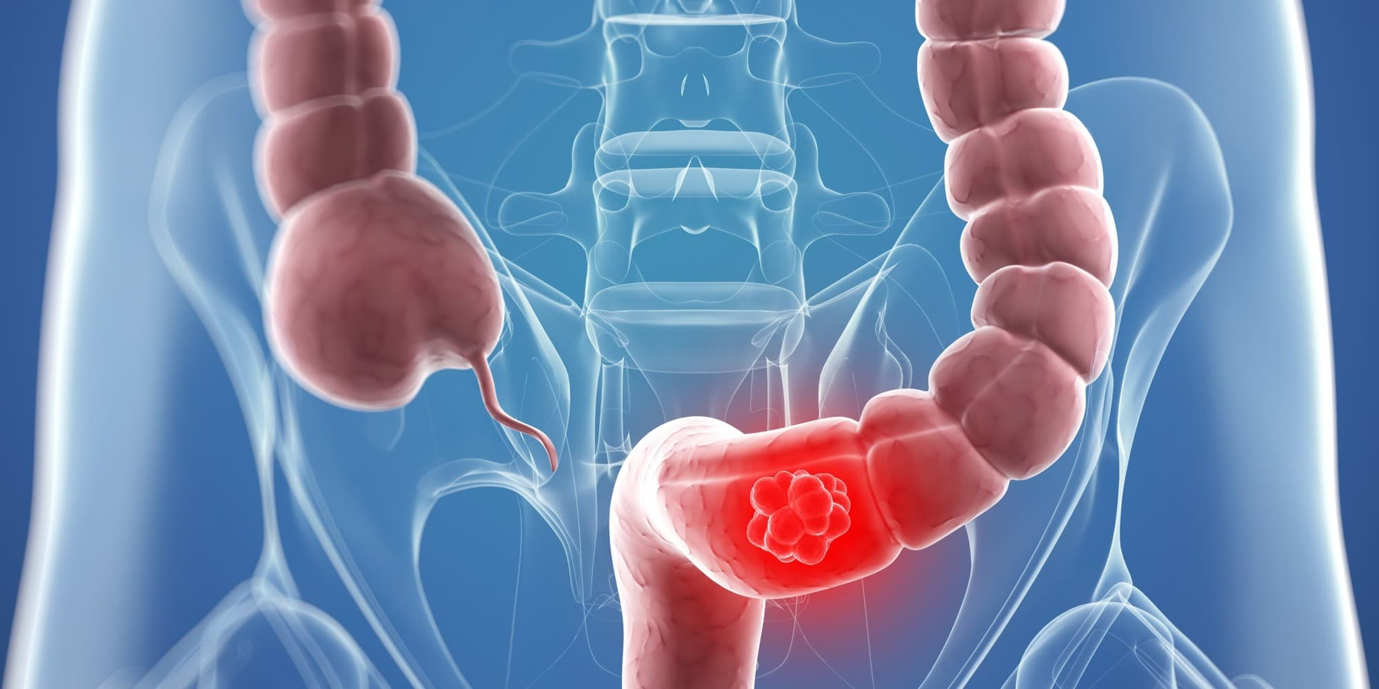 Колоректальный рак: высокая летальность и полная излечиваемость
