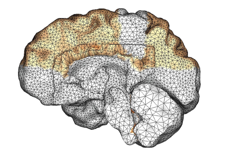 Ученые визуализировали развитие нейродегенеративных заболеваний
