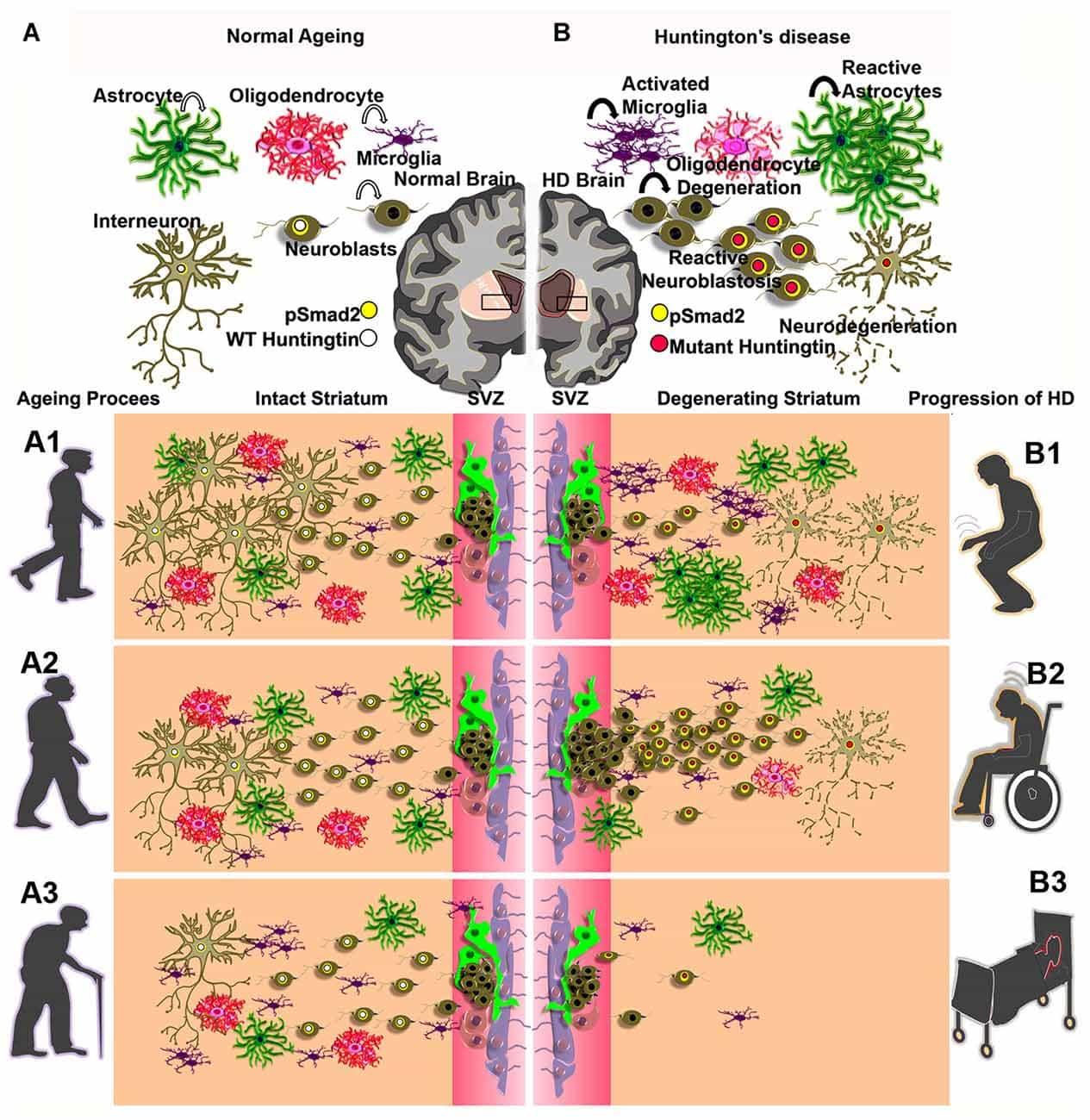Генная терапия сохранит мозг при болезни Гентингтона