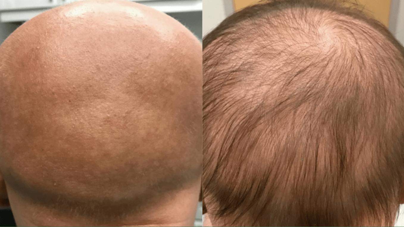 Препарат против экземы стимулировал рост волос у девушки с облысением