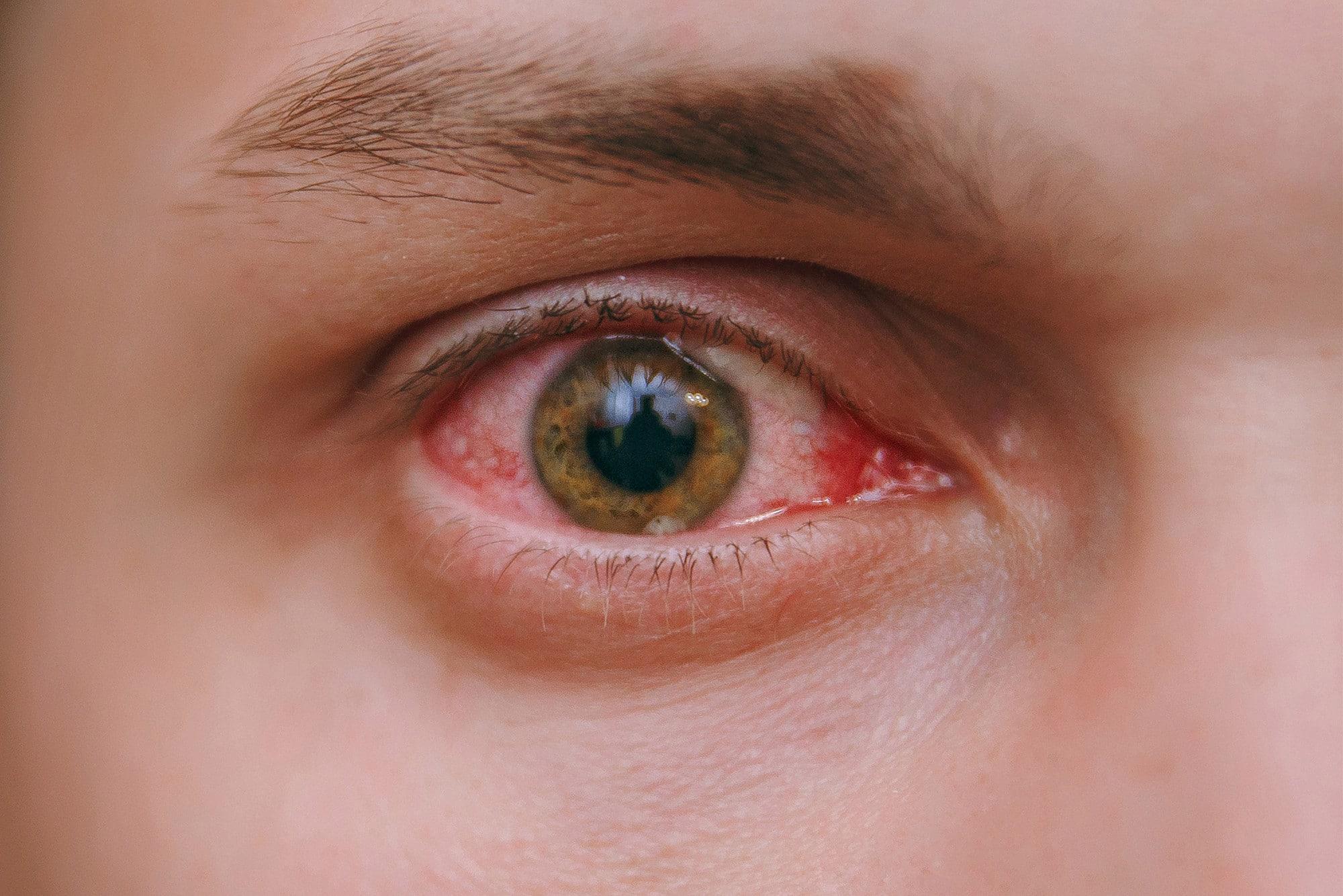 Препарат против импотенции лишил мужчину цветового зрения