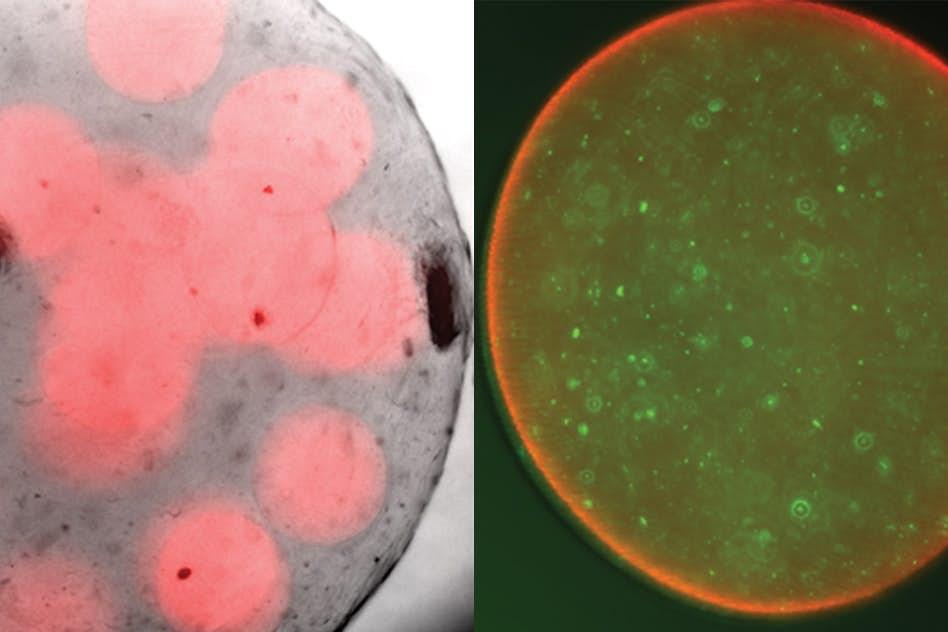 Пробиотики и антибиотики объединяются против опасных супербактерий