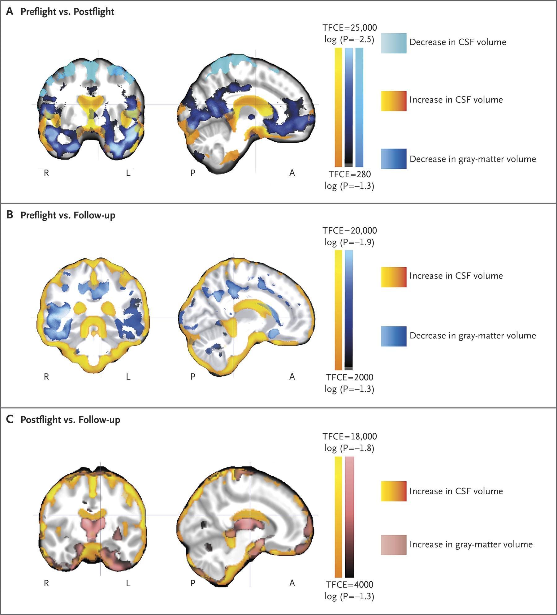 Микрогравитация повлияла на объем веществ головного мозга