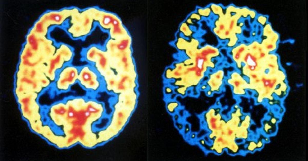 Изменчивый геном нейронов и болезнь Альцгеймера