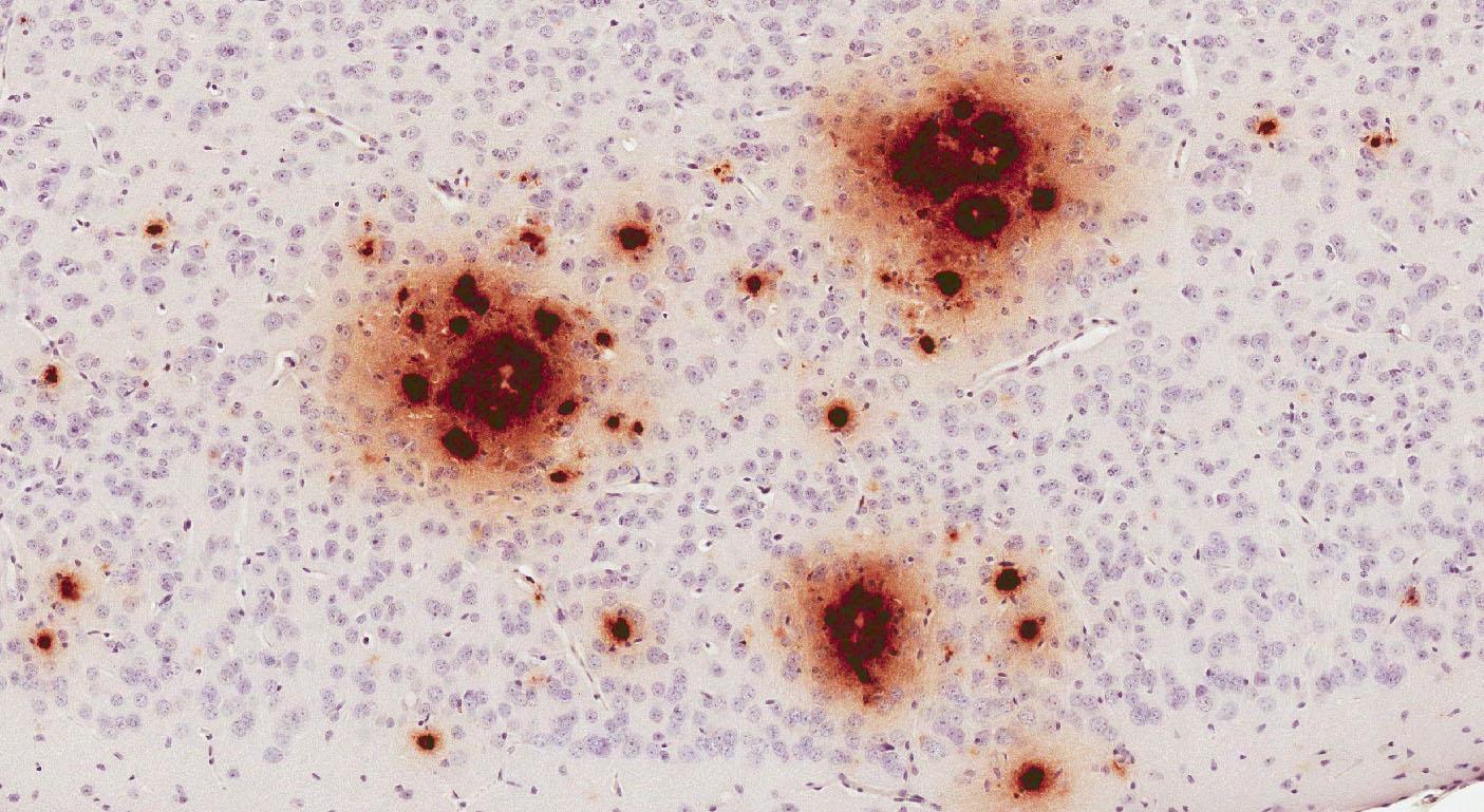 Для альцгеймерических мутаций нашли новый механизм
