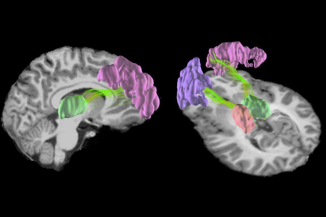 Американский футбол вызывает в мозге микроструктурные изменения