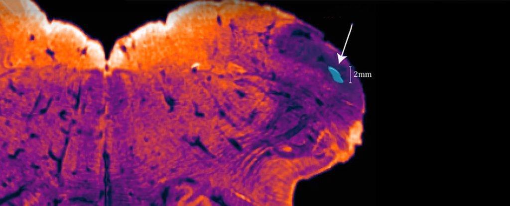 Группа нейробиологов обнаружила неизвестный ранее участок человеческого мозга