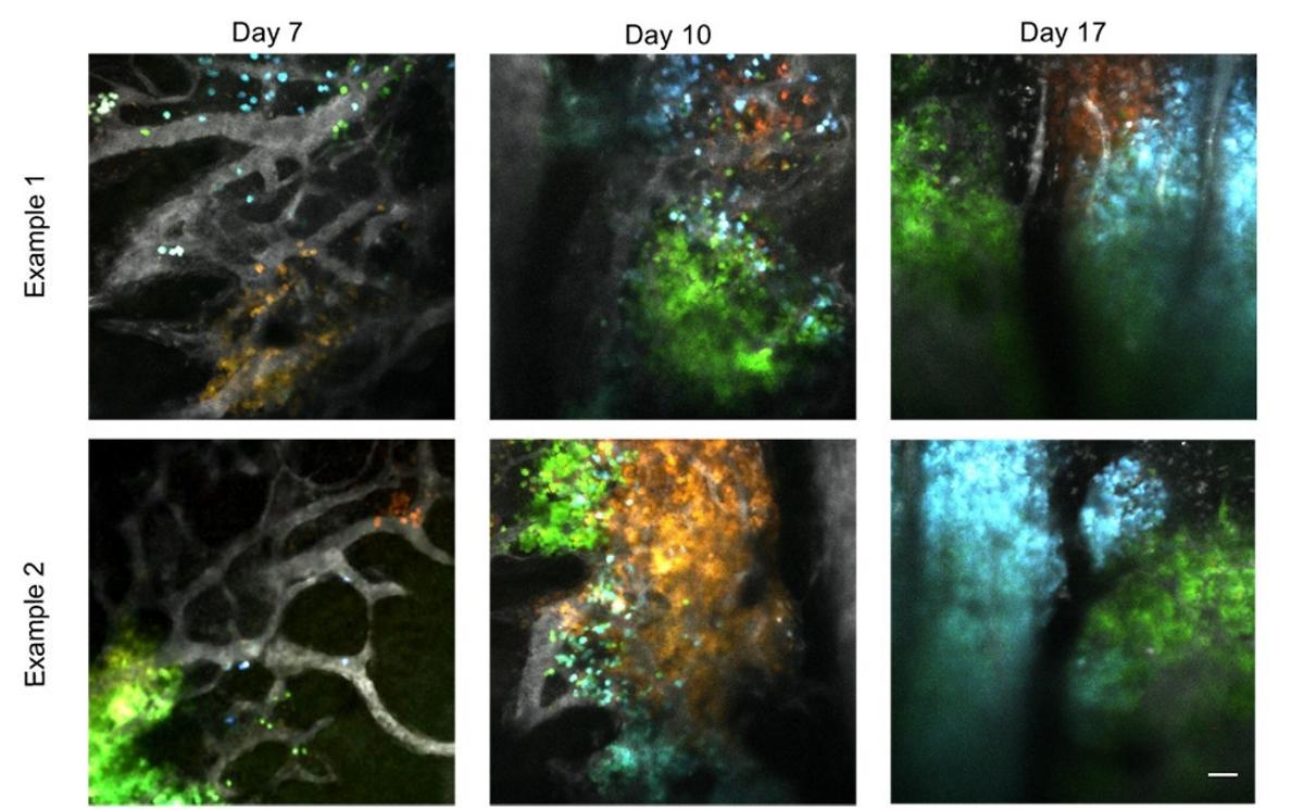 Иммунная система ограничила разнородность раковых клеток
