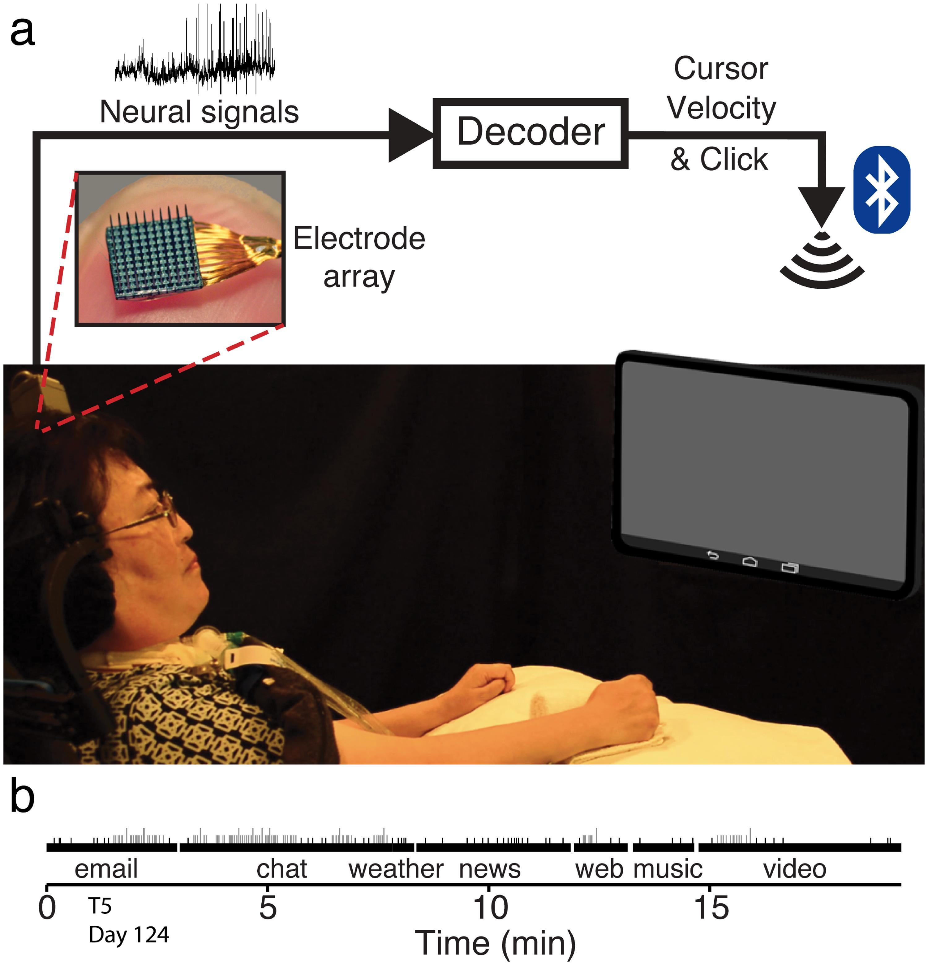 Инвазивный нейроинтерфейс помог парализованным людям освоить планшет
