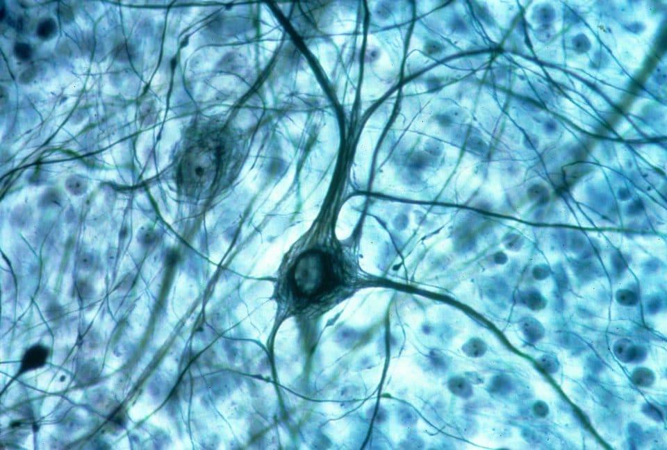 Что определяет судьбу стволовых нервных клеток при развитии мозга?