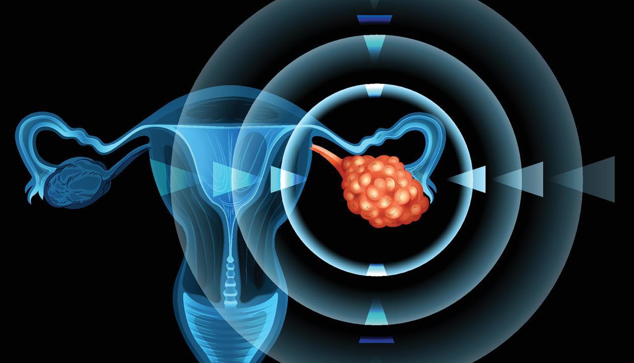 Ежегодное УЗИ улучшает выживание при раке яичника