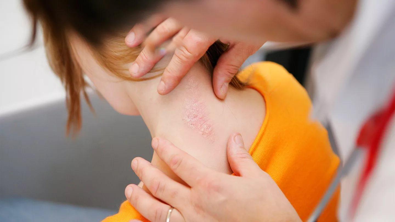 У людей с псориазом чаще возникают проблемы с кишечником
