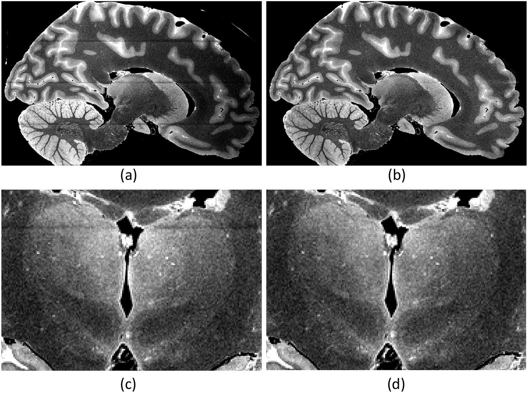 Новый атлас таламуса поможет в диагностике болезни Альцгеймера