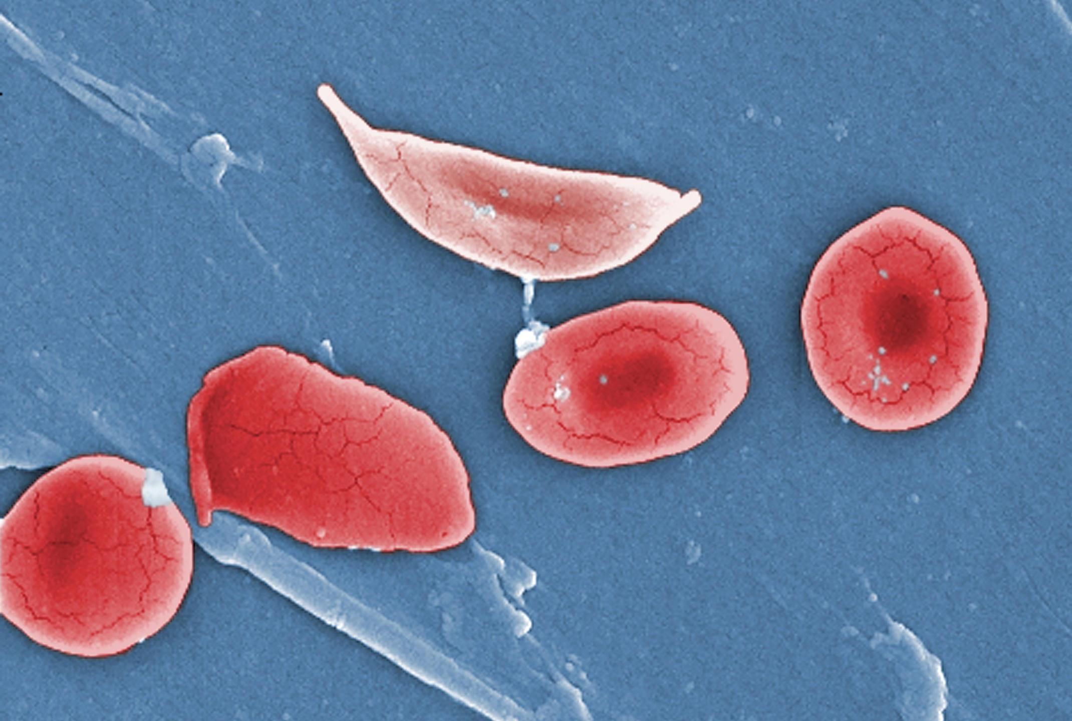 Серповидноклеточную анемию предложили лечить «раздуванием» эритроцитов