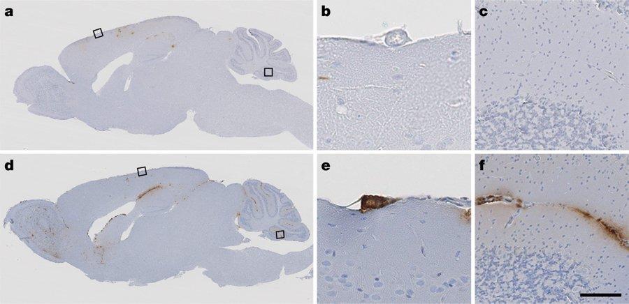 Человеческий бета-амилоид заразил мышей болезнью Альцгеймера