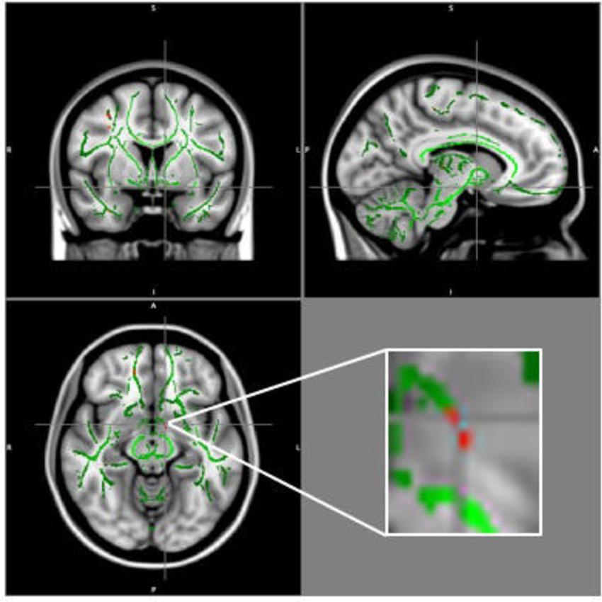 В мозге подростков с ожирением нашли нарушения структуры белого вещества