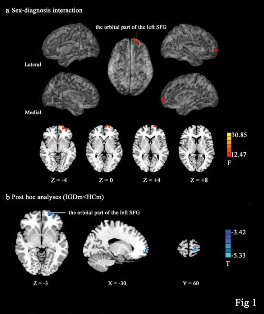 Что игромания делает с мозгом